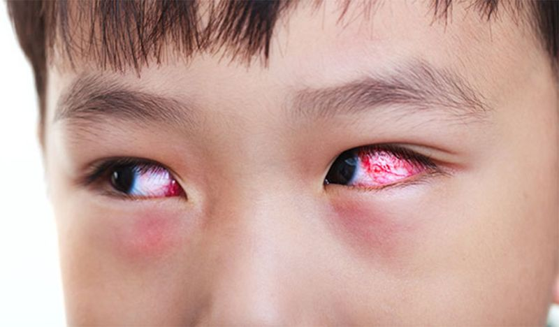 Hiện tượng chảy máu mắt