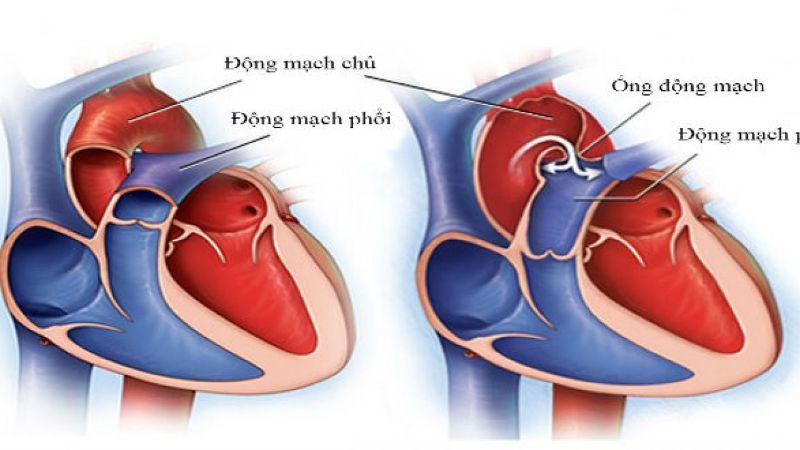còn ống động mạch