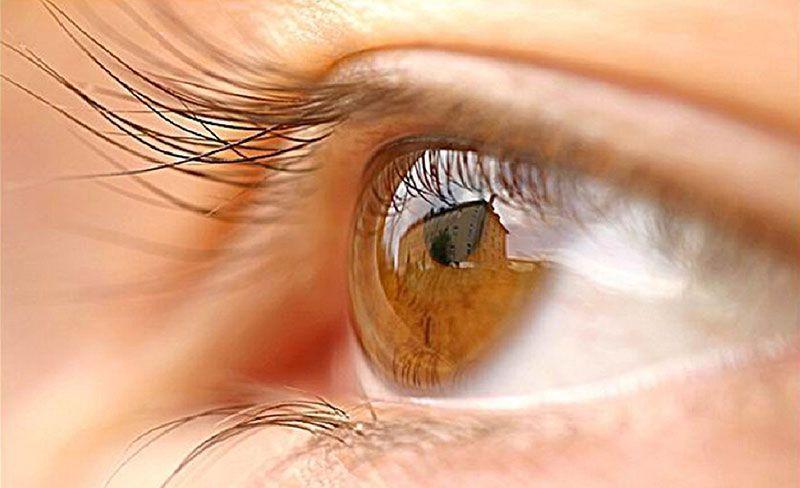 Gân đỏ trong mắt là bệnh gì