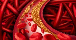 giảm mỡ máu bằng lá xạ đen