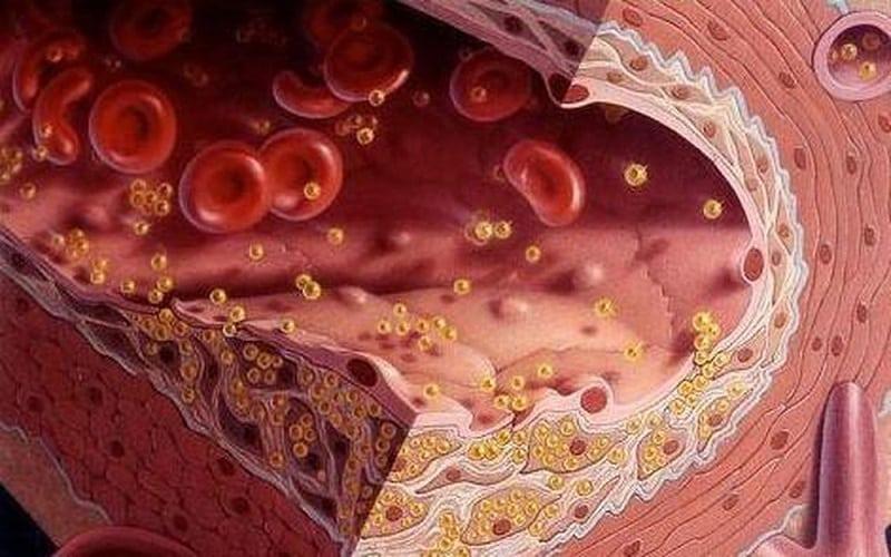 Cách sử dụng nần nghệ chữa mỡ máu